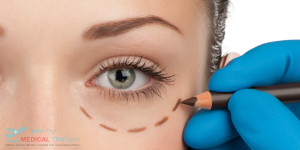 Eyelid Correction Surgery