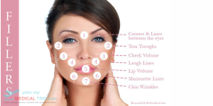 Anti Aging & Skin Rejuvination  Dermal Fillers